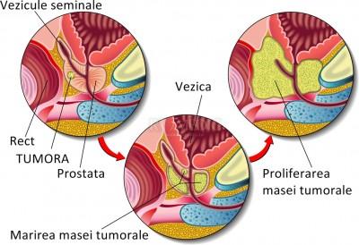 cancer prostata speranta de viata